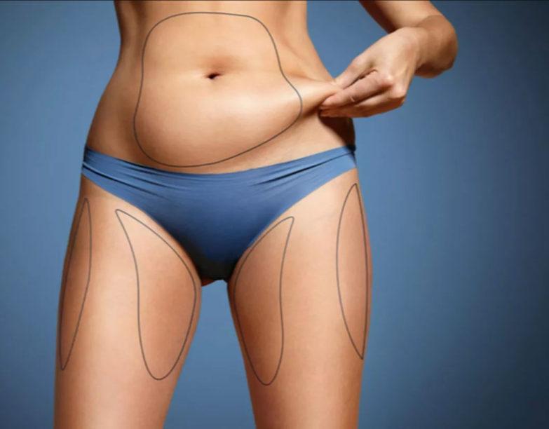 Uyluk Liposuction