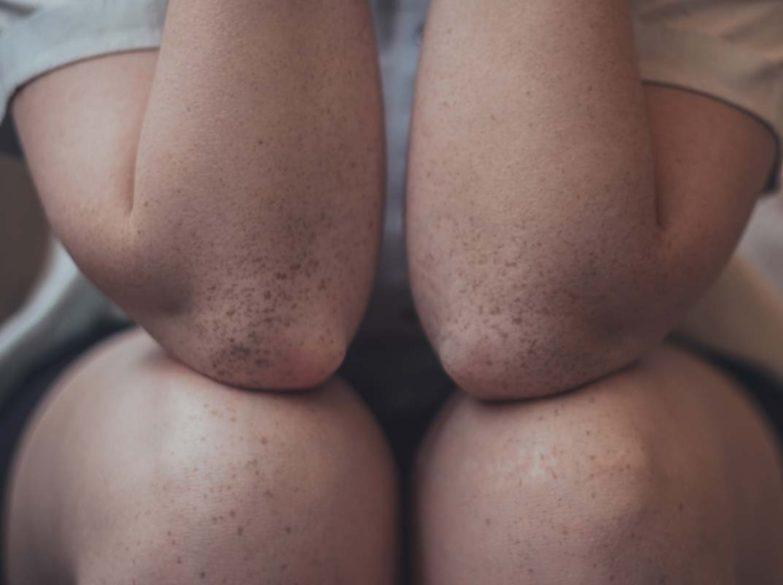 Diz Liposution