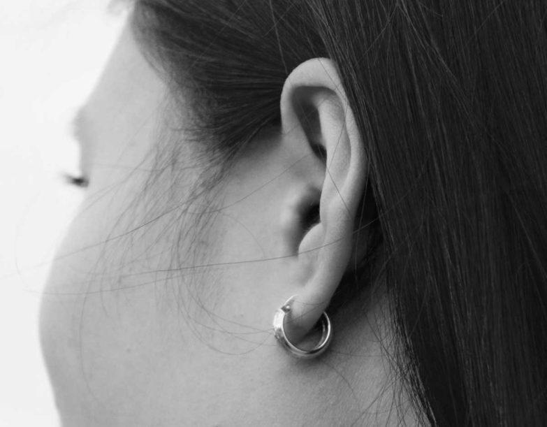 Belirgin Kulak Düzeltmesi